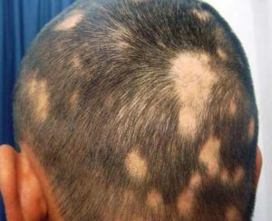 Hair loss or baldness that occurs in patches
