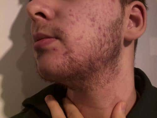 How to Prevent Acne Around Your Beard