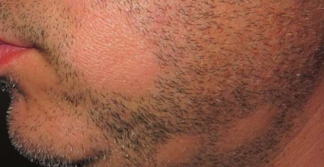 How to Prevent Beard Hair Loss