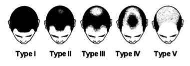 Progression and phases of typical male pattern baldness