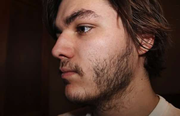 how to stop facial hair growth in females