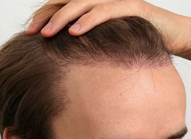 micro needling treatment for hair growth