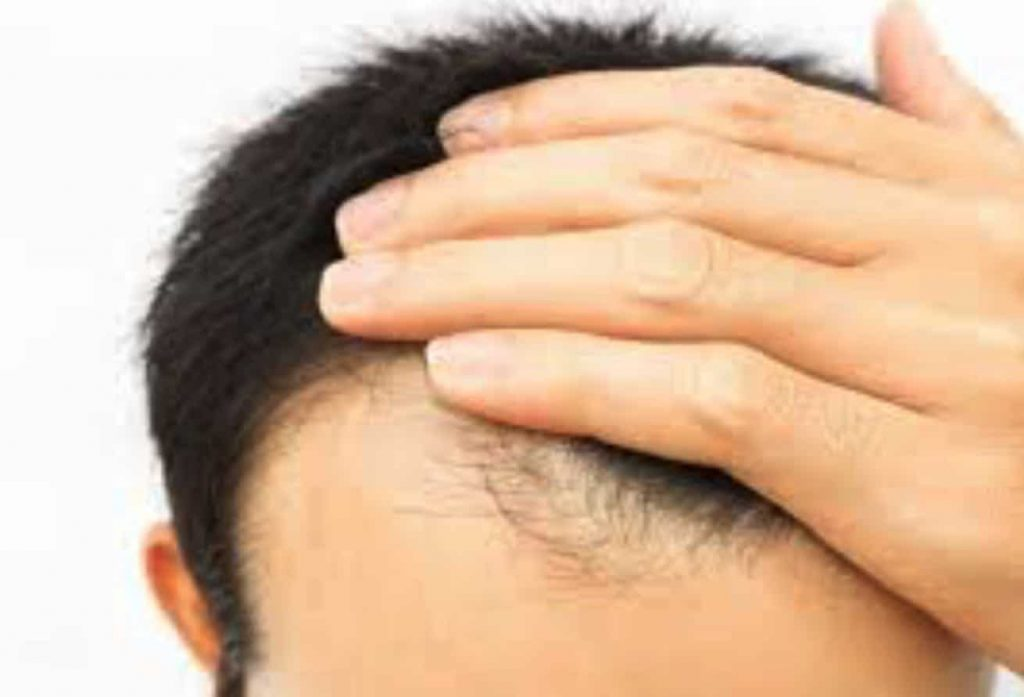 grooming technique: cause of hair loss?